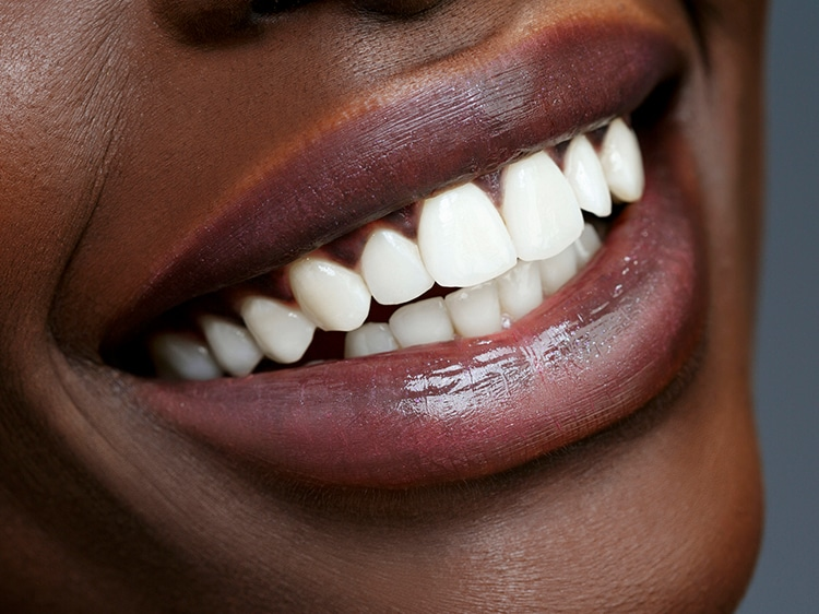 close up of woman smiling with white teeth
