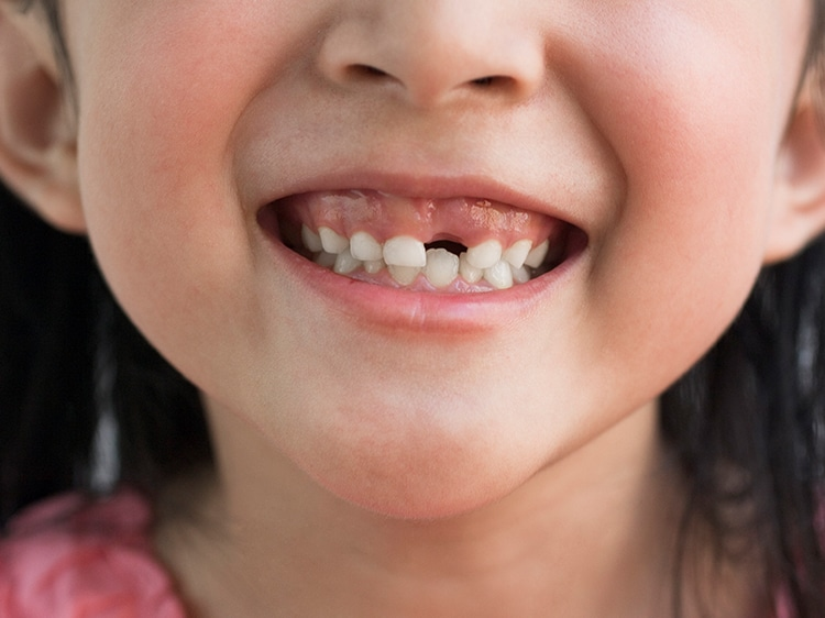 toddler missing front tooth smiling