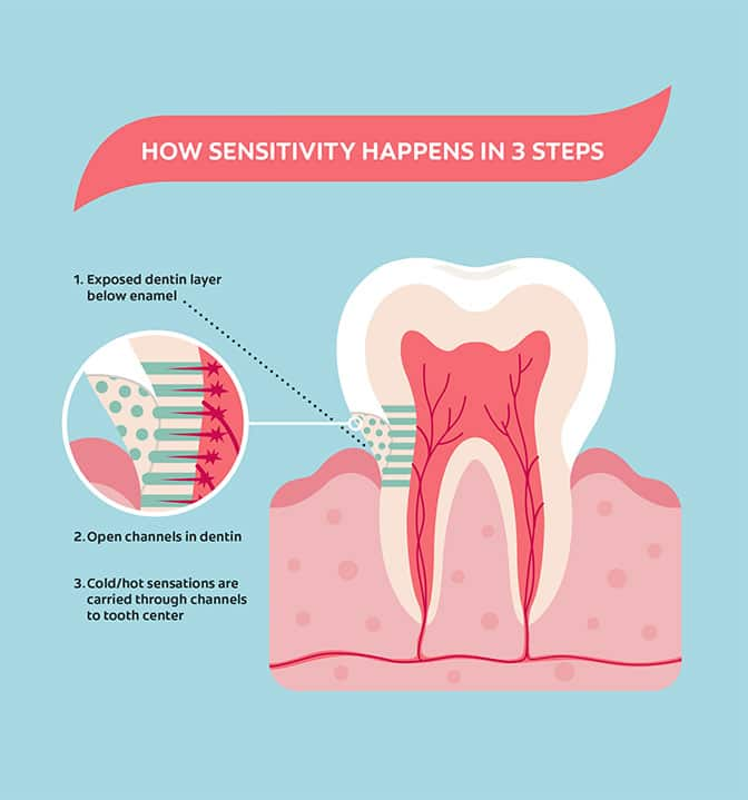 Tooth Sensitivity Infographic