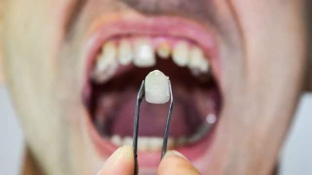 dental-prosthesis-metal-ceramics-tweezers-patient