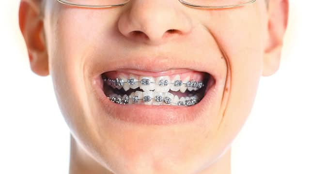 A close up of the teenager wearing braces