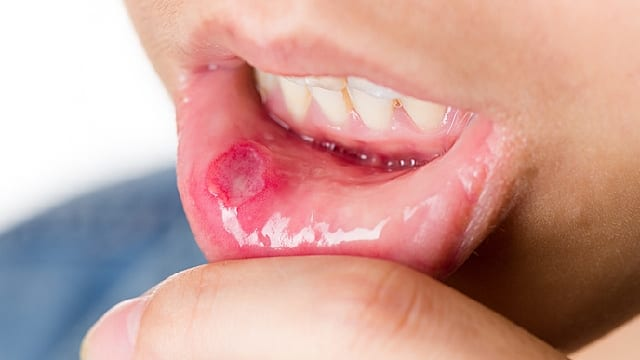 Eight Common Oral Mouth Infections