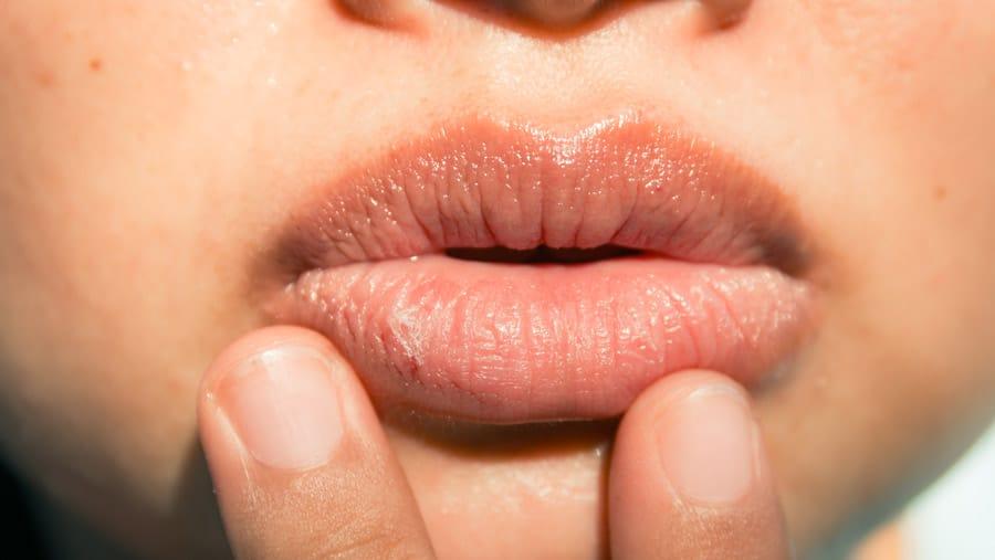 อาการปากบวม