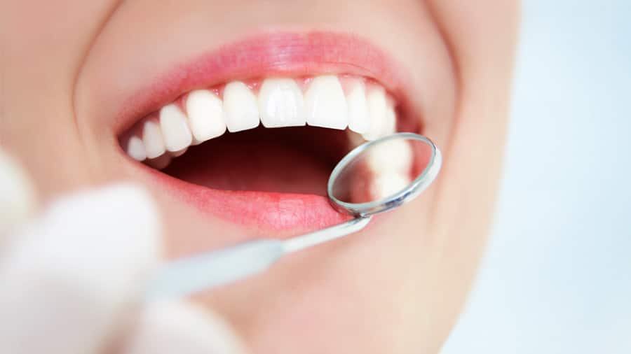why are your teeth sensitive after cleaning by the dentist? - colgate sg