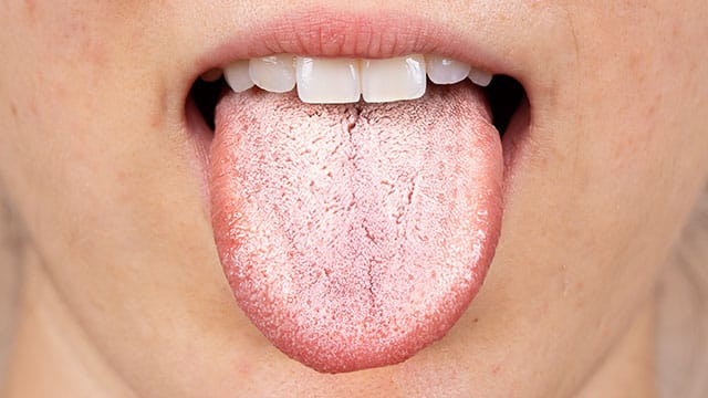 A close up of the white tongue