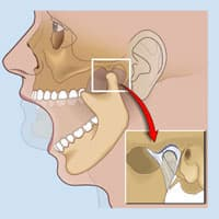 Desorden Temporomandibular