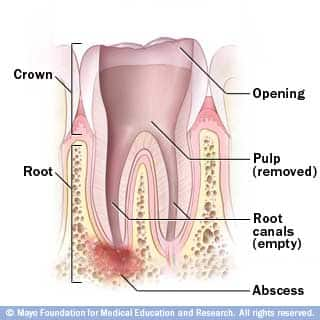 rootcanalcleaned