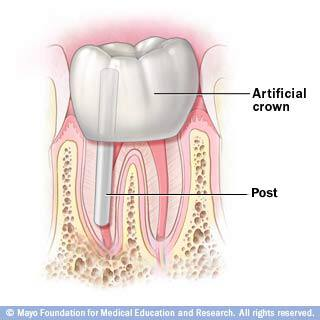 rootcanalcrown