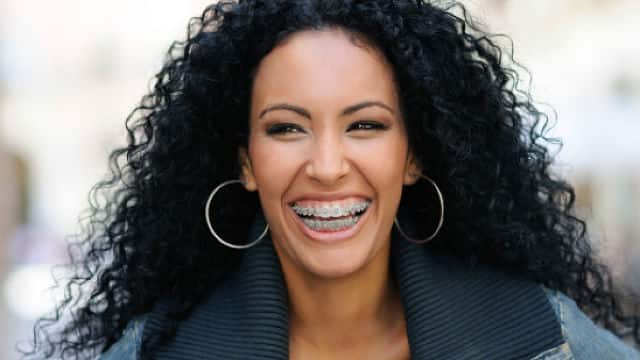 woman smiling showing metal braces